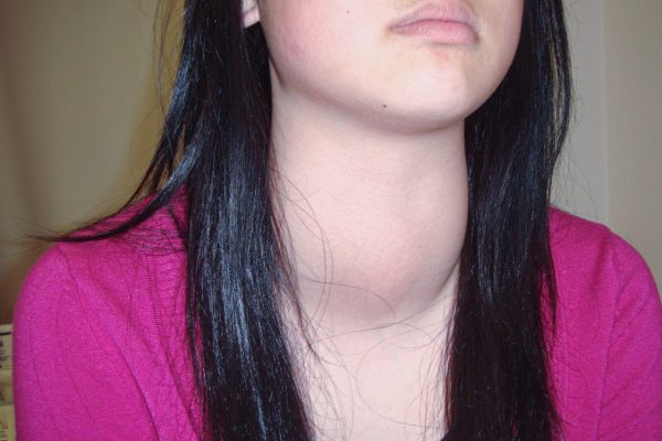 What is goiter?
